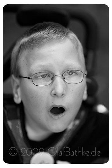 fotos-koerper-mehrfachbehinderte-kinder-09